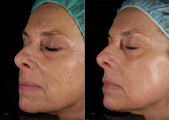 Face before and after combined laser resurfacing with fractional erbium laser