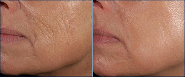 Before and after wrinkle removal with combined laser resurfacing