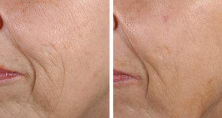 Before and after combined fractional erbium laser resurfacing of the cheeks