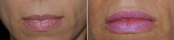 Lips before and after lip augmentation with dermal filler injection of Restylane®