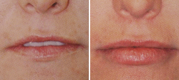 Before and after lip augmentation with dermal filler injection