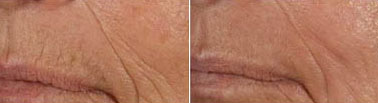 Before and after lip wrinkle removal with laser resurfacing