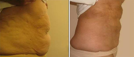 Before and after laser liposuction of the abdomen