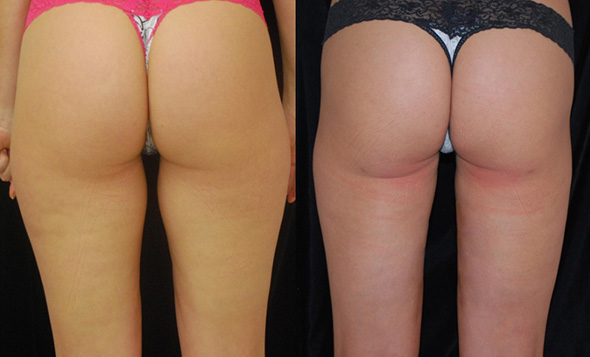 Thighs and hips before and after liposuction