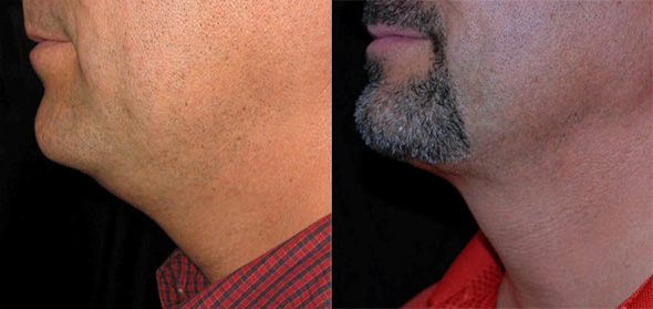 Before and after removal of double chin in male with laser liposuction