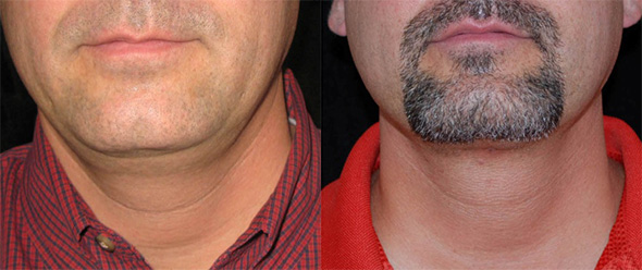 Neck before and after double chin removal with laser liposuction