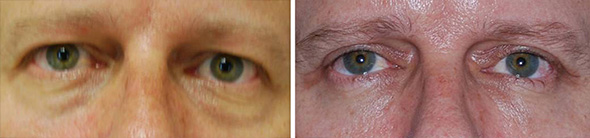 Before and after male blepharoplasty or eyelid surgery to remove puffy eyes, eye  bags, and dark circles under the eyes and eye hoods