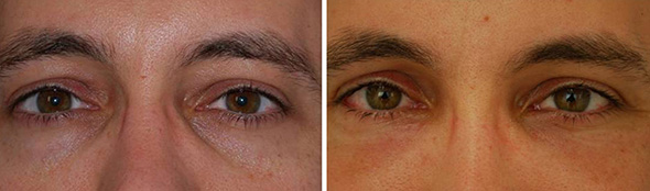 Before and after hollow eye correction with male blepharoplasty and fat grafting