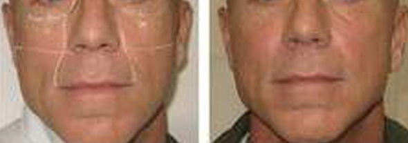 Before and after male liquid facelift with Perlane® dermal filler injection to plump cheeks and fill nasal labial fold