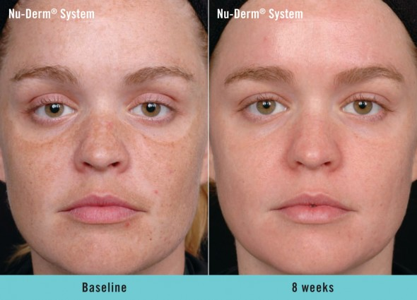 Before and after Obagi Nu-Derm® System with Retin-A® and microdermabrasion