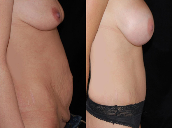 Before and after mommy makeover with full tummy tuck and breast augmentation.  Breast lift was  recommended but the patient chose to only have implants.