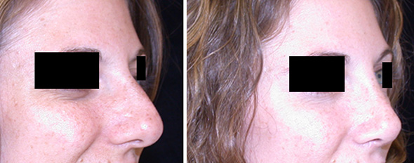 Before and after rhinoplasty or nose job