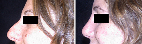 Nose before and after rhinoplasty or nose job