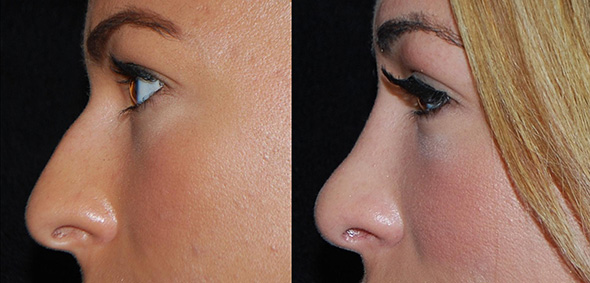 Nose before and after open Rhinoplasty