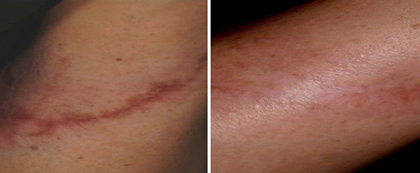 Before and after laser scar removal with 1540 non-ablative fractional erbium laser scar removal treatment