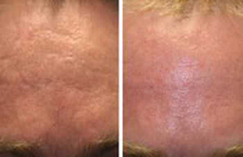Acne scars before and after laser scar removal with non-ablative 1540 fractional erbium laser scar removal treatment