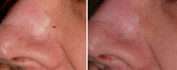 Scar before and after laser scar removal treatment with non-ablative fractional 1540 erbium laser scar treatment