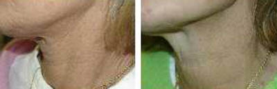 Before and after non-surgical skin tightening of the neck