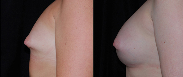 Before and after breast augmentation to correct tubular breasts