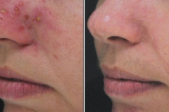 Boston acne treatment