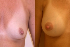 Boston Breast Augmentation