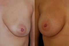 Breast Augmentation Surgeon Boston