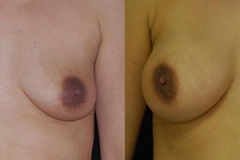 Boston Breast Implants