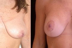 Boston Breast Lift Surgery