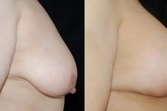 Best Breast Lift