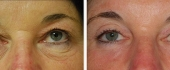 eyelid-1
