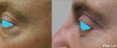 eyelid-10