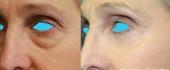 eyelid-12