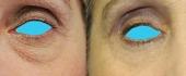 eyelid-14