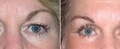 eyelid-3