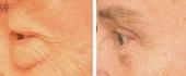 eyelid-4