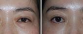 eyelid-5