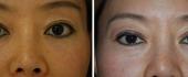 eyelid-6