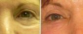 eyelid-7