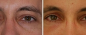 eyelid-8