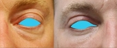 eyelid-9