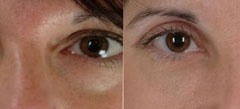 Boston Eyelid Surgery
