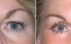 Boston Blepharoplasty