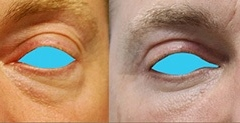 Best eyelid rejuvenation