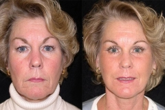 Boston Facelift Surgeon