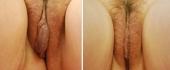 labiaplasty-1