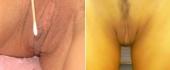 labiaplasty-2