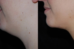 Boston neck liposuction