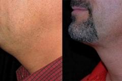 Laser liposuction photos
