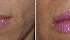 Boston Lip Augmentation