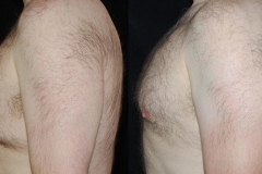 Boston gynecomastia treatment